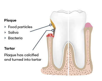 Dental disease teeth Plaque food particles, saliva and bacteria Tartar Plaque has been calcified and turned into tartar
